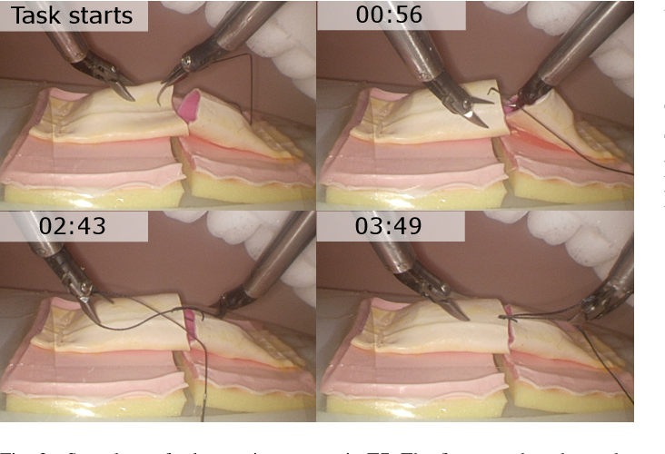 Figure 3 for SmartArm: Suturing Feasibility of a Surgical Robotic System on a Neonatal Chest Model