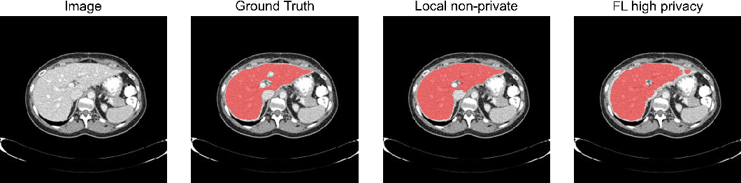 Figure 4 for Differentially private federated deep learning for multi-site medical image segmentation