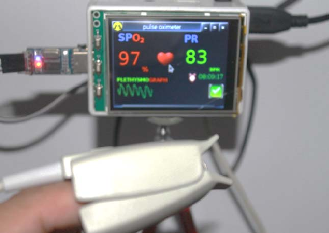 Figure 10 from Handheld pulse oximeter based on single board