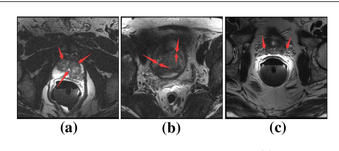 Figure 1 for Selective Information Passing for MR/CT Image Segmentation