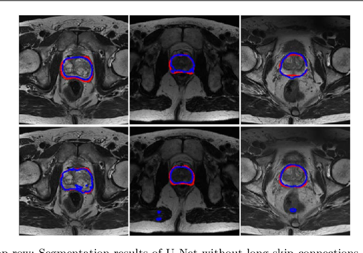 Figure 3 for Selective Information Passing for MR/CT Image Segmentation