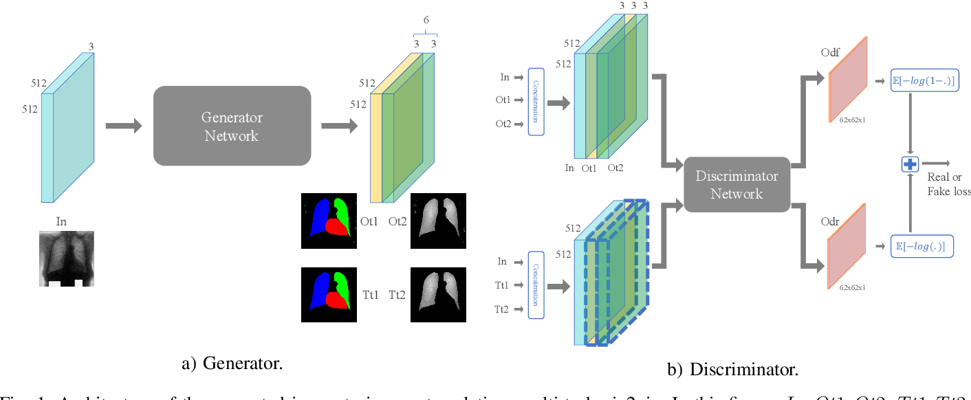Figure 1 for Image to Images Translation for Multi-Task Organ Segmentation and Bone Suppression in Chest X-Ray Radiography