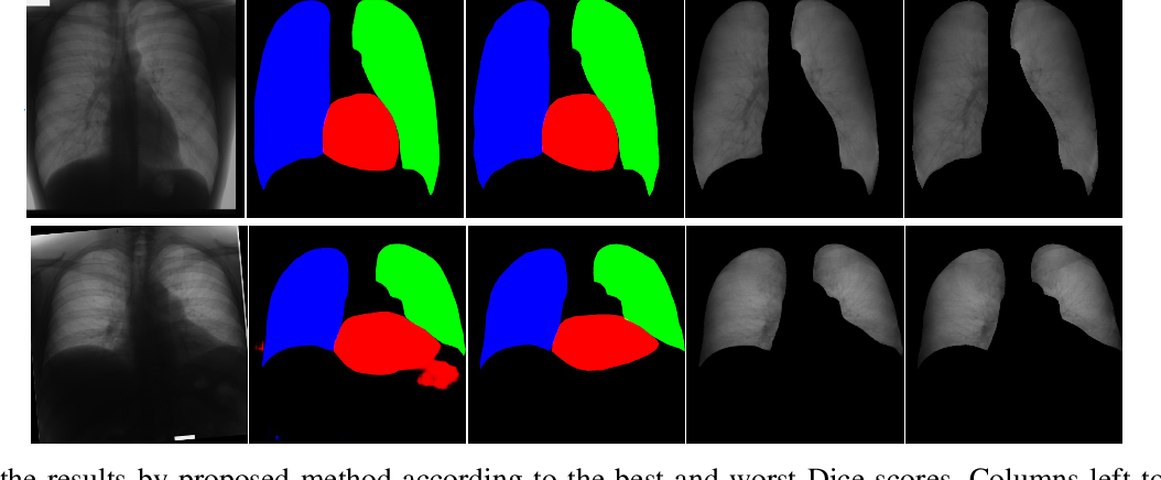 Figure 4 for Image to Images Translation for Multi-Task Organ Segmentation and Bone Suppression in Chest X-Ray Radiography