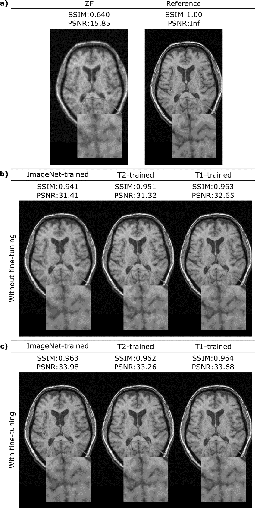 Figure 3 for A Transfer-Learning Approach for Accelerated MRI using Deep Neural Networks