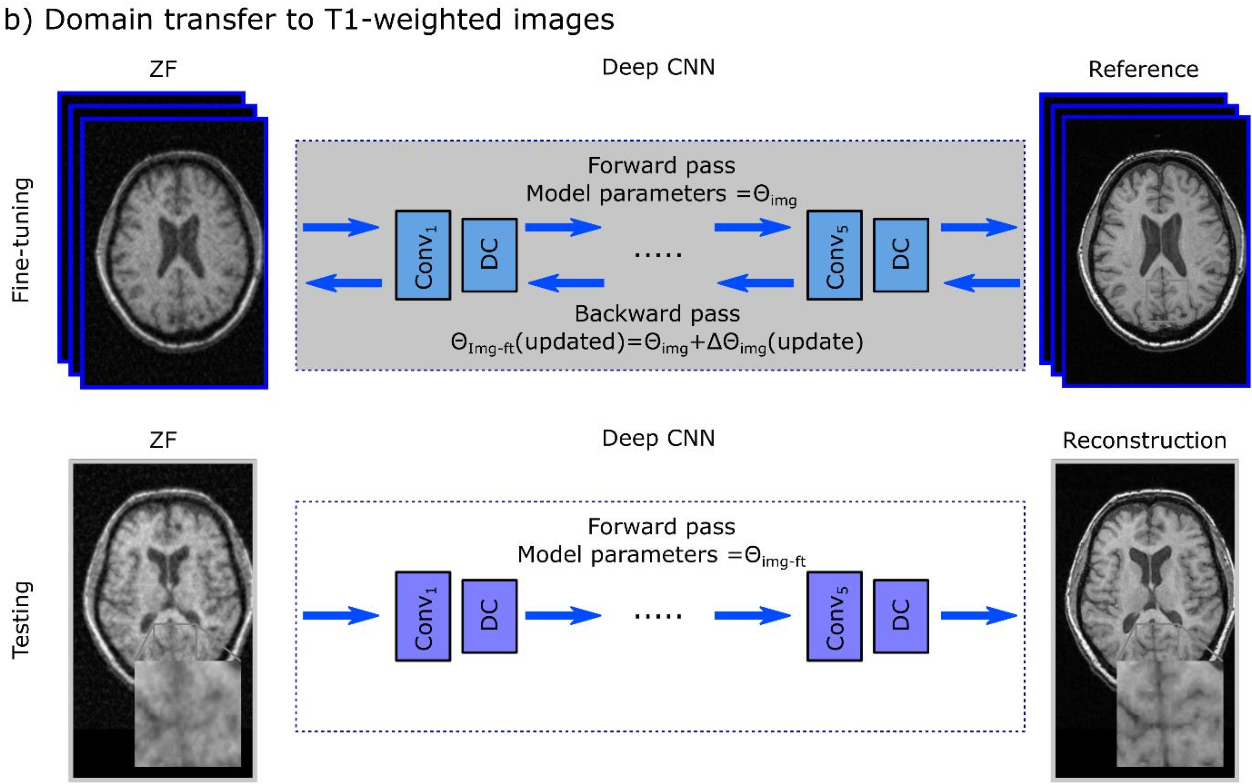 Figure 1 for A Transfer-Learning Approach for Accelerated MRI using Deep Neural Networks