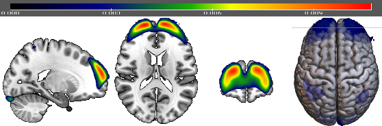 Figure 4 for Variational voxelwise rs-fMRI representation learning: Evaluation of sex, age, and neuropsychiatric signatures