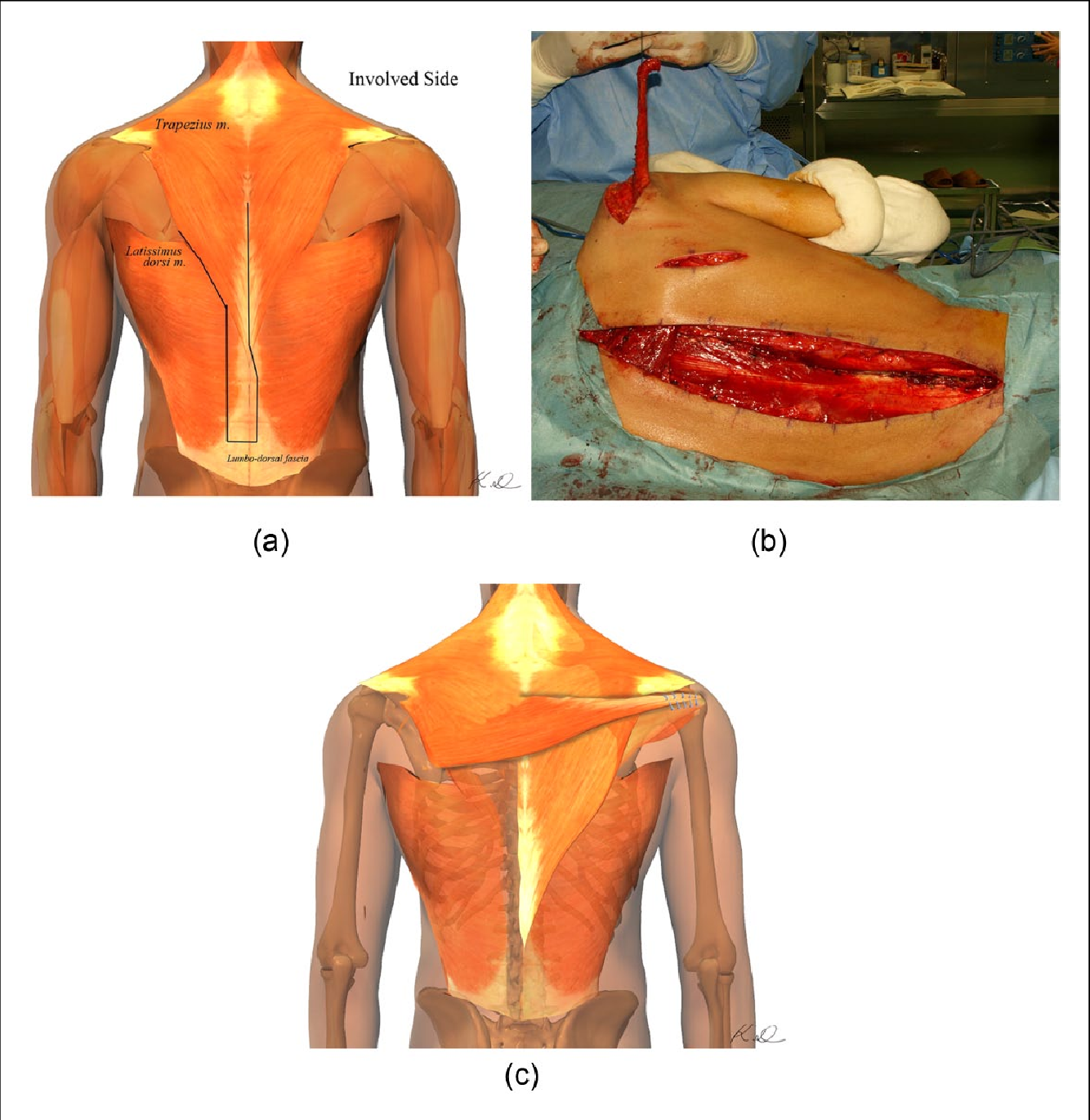 Contralateral Lower Trapezius Transfer For Restoration Of Shoulder