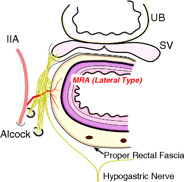 Anatomy of the middle rectal artery: a review of the historical ...