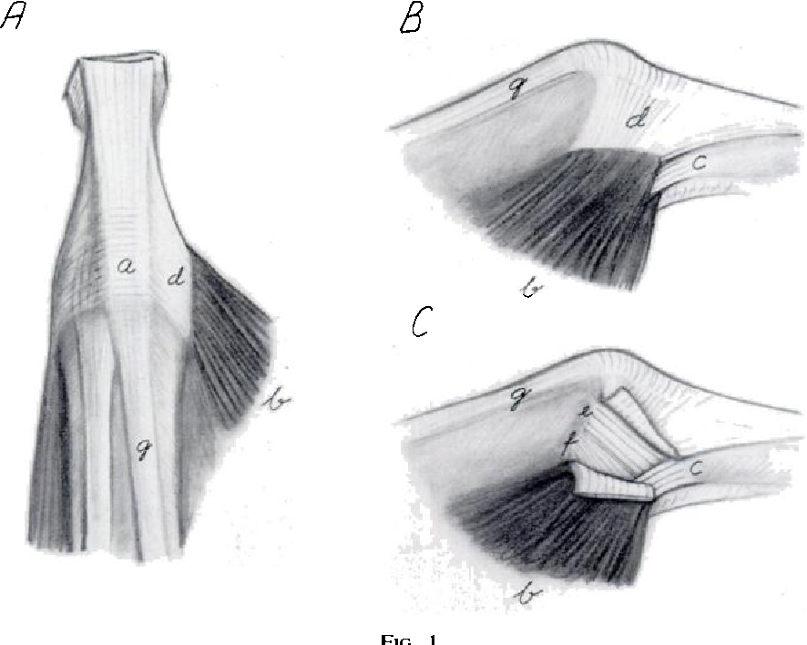 DISPLACEMENT OF THE RUPTURED ULNAR COLLATERAL LIGAMENT OF THE ...