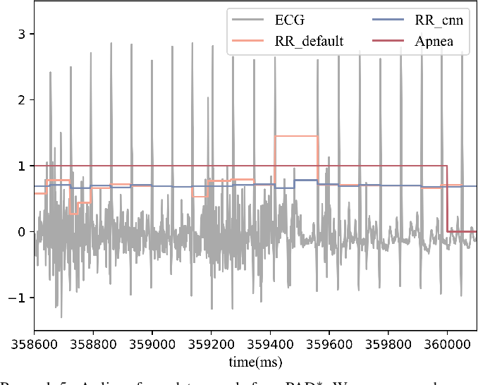 Figure 2 for FENet: A Frequency Extraction Network for Obstructive Sleep Apnea Detection
