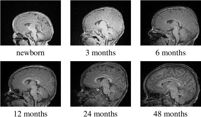 Figure 1 for FRNET: Flattened Residual Network for Infant MRI Skull Stripping
