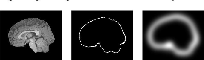 Figure 4 for FRNET: Flattened Residual Network for Infant MRI Skull Stripping