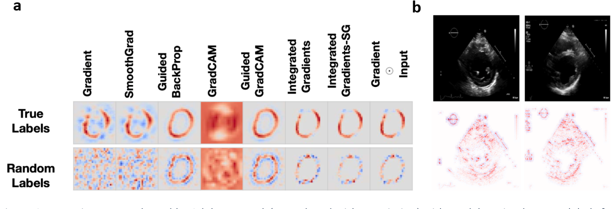Figure 4 for Medical Imaging and Machine Learning