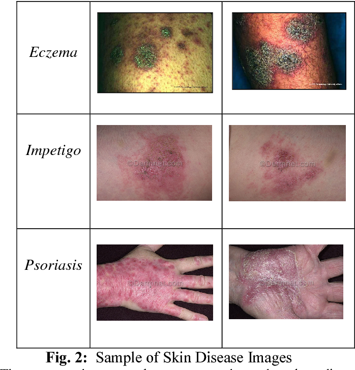 Figure 2 from Skin disease recognition using texture
