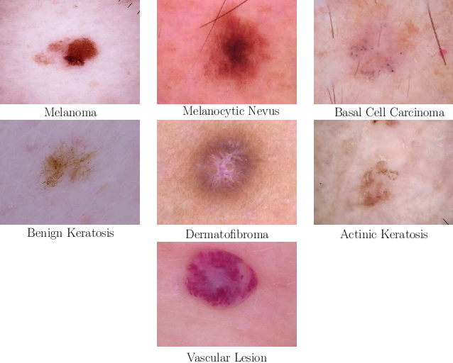 Figure 1 for Skin Lesion Classification Using CNNs with Patch-Based Attention and Diagnosis-Guided Loss Weighting