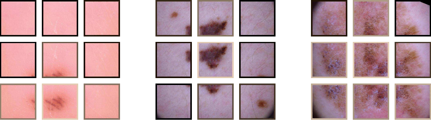 Figure 4 for Skin Lesion Classification Using CNNs with Patch-Based Attention and Diagnosis-Guided Loss Weighting