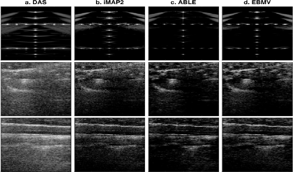 Figure 1 for Compressed Ultrasound Imaging:from Sub-Nyquist Rates to Super-Resolution