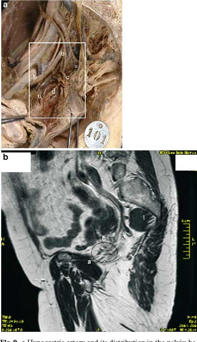 Figure 9 from The female inferior hypogastric (= pelvic) plexus ...
