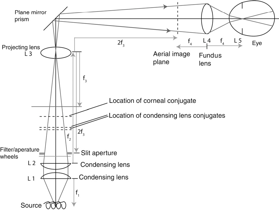 PDF] Unwanted reflections during slit lamp assisted binocular