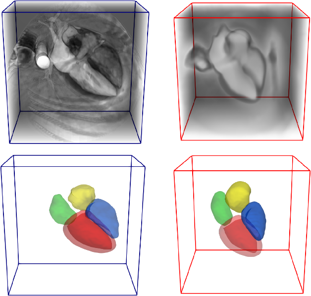 Figure 3 for Atlas-ISTN: Joint Segmentation, Registration and Atlas Construction with Image-and-Spatial Transformer Networks