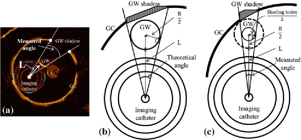 Guide wire shadow assessed by shading index is reduced in