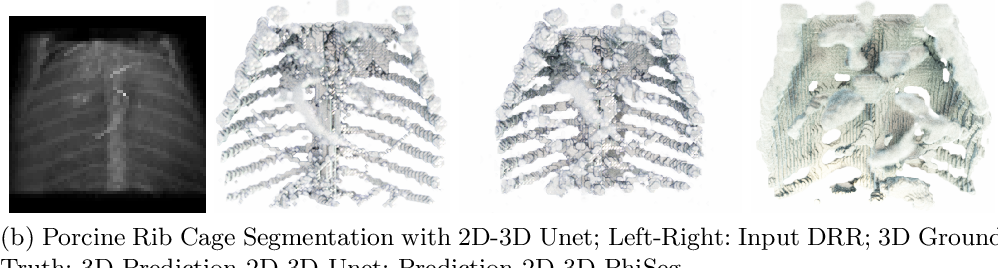 Figure 3 for 3D Probabilistic Segmentation and Volumetry from 2D projection images