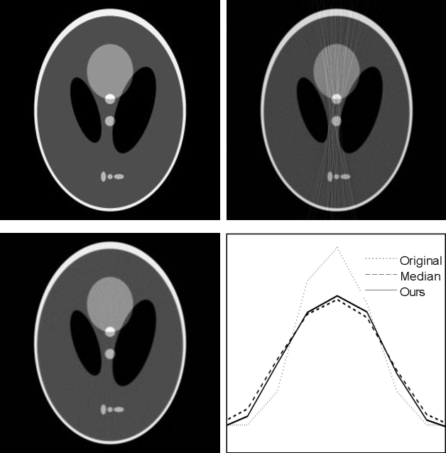 Figure 1 for Fast LLMMSE filter for low-dose CT imaging