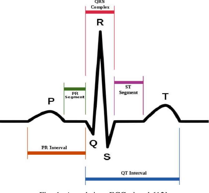 Figure 1 for ECG Identification under Exercise and Rest Situations via Various Learning Methods