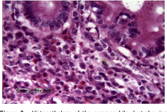 Figure 2 from Primary non-Hodgkin's lymphoma of the common