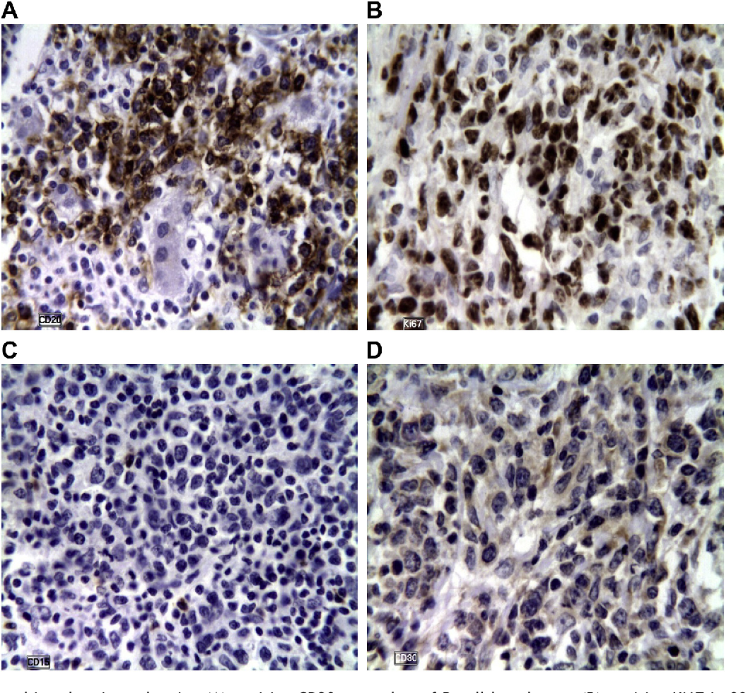 Figure 1 from Primary non-Hodgkin's lymphoma of the common