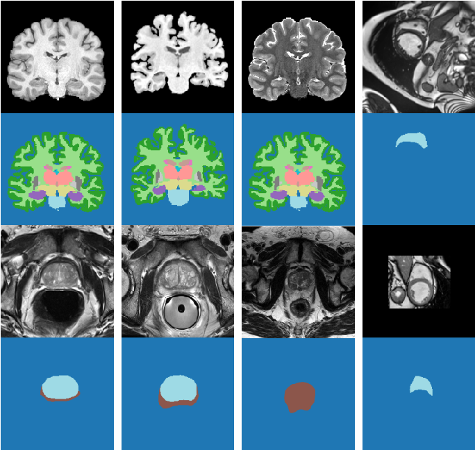 Figure 2 for Test-Time Adaptable Neural Networks for Robust Medical Image Segmentation
