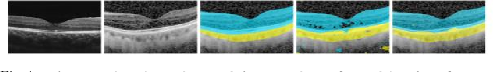 Figure 1 for Uncertainty-Guided Domain Alignment for Layer Segmentation in OCT Images