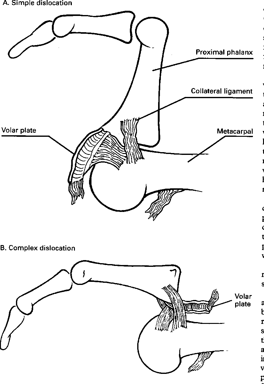 Figure 2 from A dislocated finger. - Semantic Scholar