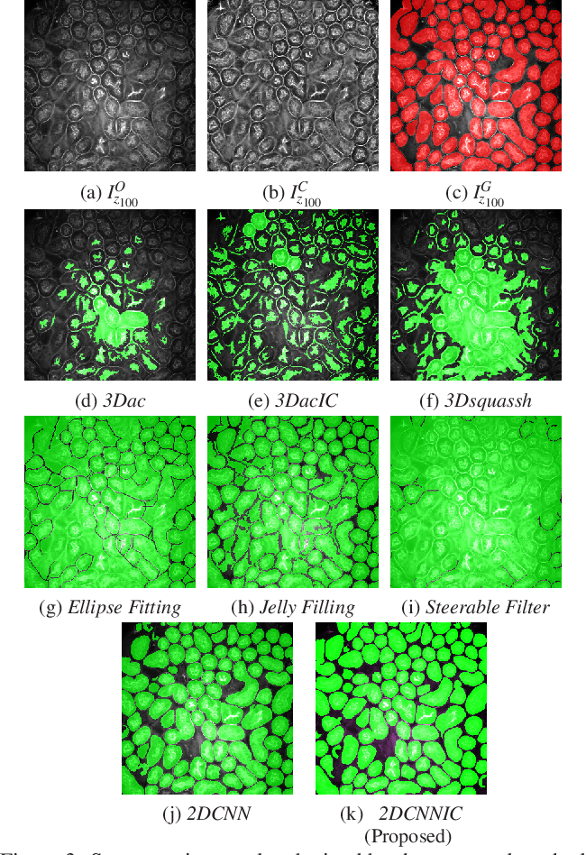 Figure 4 for Tubule segmentation of fluorescence microscopy images based on convolutional neural networks with inhomogeneity correction