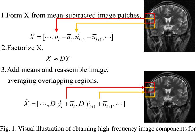 Figure 1 for Learning Priors in High-frequency Domain for Inverse Imaging Reconstruction