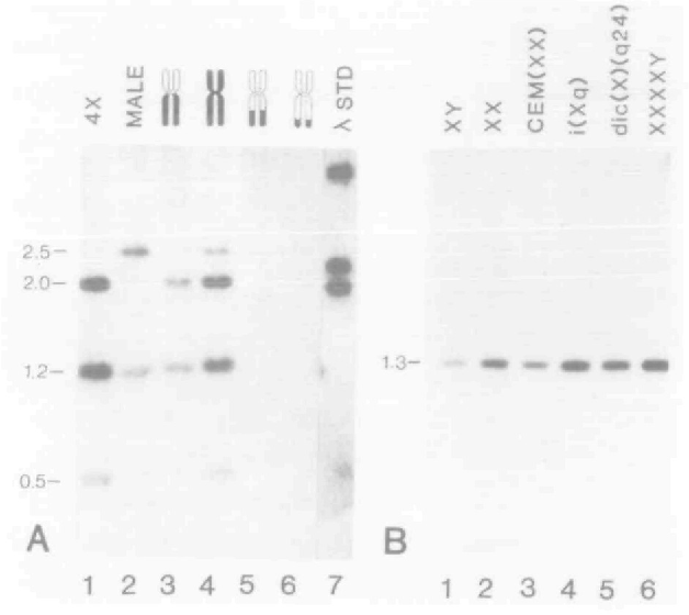 Figure 6. Localization and characterization of a cloned 1.3 kb Hind III DNA fragment. The methodology and hybrid X chromosome representations are as in the previous figures. In both autoradiqqrams (A) and (B), the 1.3 kb Hind III fragment hybridized was P-labeled using T4 DNA polymerase. (A) Aliquots of EcoRI digests of DNA (3 ug) were as follows; lane 1, 49,XXXXY lymphoblast DNA; lane 2, 46, XY placenta DNA; lane 3, hybrid #1 DNA; lane 4, hybrid #2 DNA; lane 5, hybrid #3 DNA; lane 6, hybrid #4 DNA; lane 7, P-labeled Hind III digested XDNA. (B) Hind III digested DNA was from the following samples: lane 1, 46,XY lymphoblast DNA; lane 2, 46,XX lymphoblast DNA; lane 3, 46,XX 9p~ lymphoid DNA; lane 4, 46,X,i(Xq) lymphoblast DNA; lane 5, 46,X,dic(X)(Xq24) lymphoblast DNA; lane 6, 49,XXXXY, lymphoblast DNA. The hybridization patterns observed localize this fragment to the proximal part of the long arm of the human X.