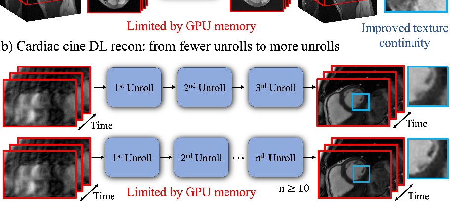 Figure 1 for Memory-efficient Learning for High-Dimensional MRI Reconstruction