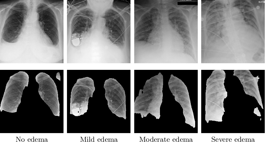 Figure 3 for Semi-supervised Learning for Quantification of Pulmonary Edema in Chest X-Ray Images