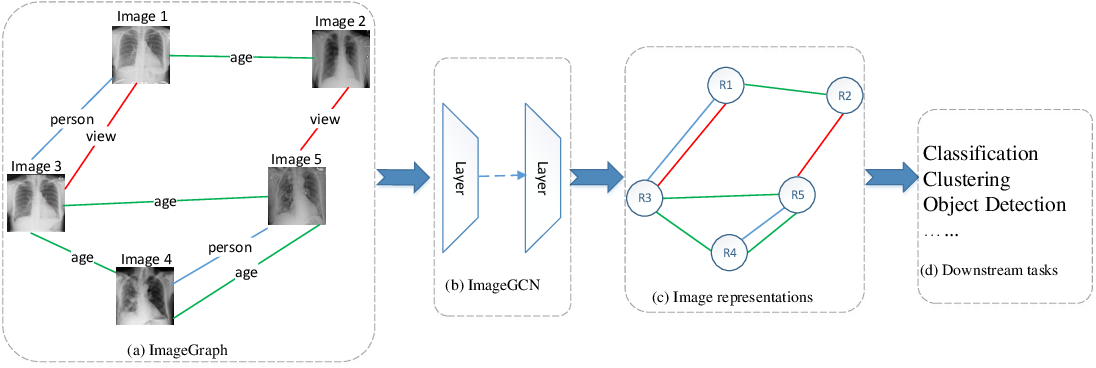 Figure 1 for ImageGCN: Multi-Relational Image Graph Convolutional Networks for Disease Identification with Chest X-rays