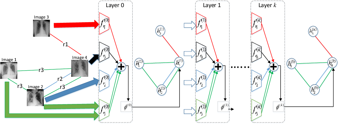 Figure 3 for ImageGCN: Multi-Relational Image Graph Convolutional Networks for Disease Identification with Chest X-rays
