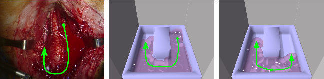 Figure 3 for Model-Predictive Control of Blood Suction for Surgical Hemostasis using Differentiable Fluid Simulations