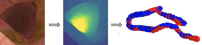 Figure 1 for Detecting Deficient Coverage in Colonoscopies