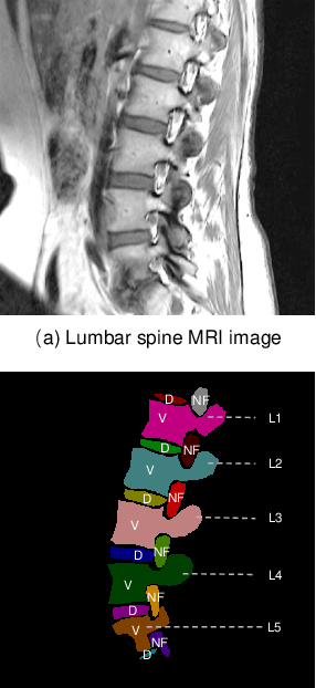 Figure 1 for Unifying Neural Learning and Symbolic Reasoning for Spinal Medical Report Generation