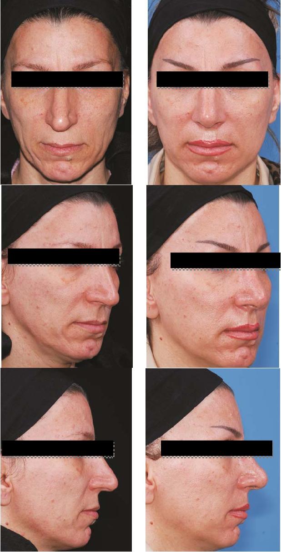 PDF] Facial Sculpturing by Fat Grafting - Semantic Scholar