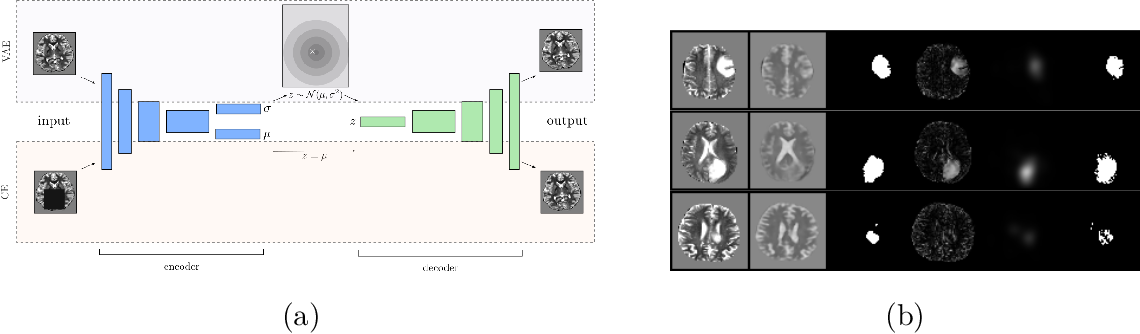 Figure 1 for Context-encoding Variational Autoencoder for Unsupervised Anomaly Detection