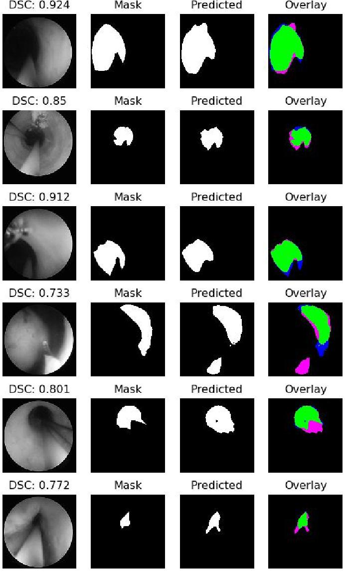 Figure 3 for A Lumen Segmentation Method in Ureteroscopy Images based on a Deep Residual U-Net architecture