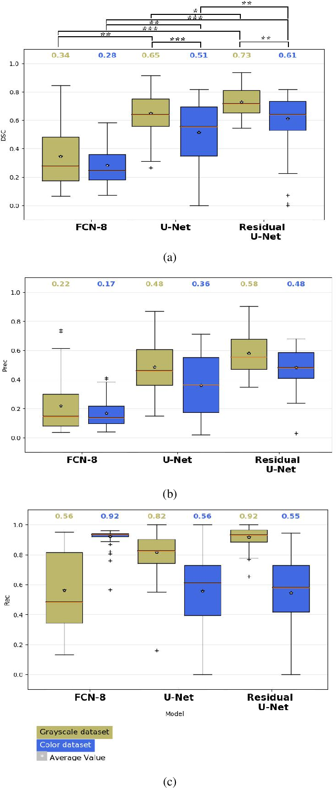 Figure 4 for A Lumen Segmentation Method in Ureteroscopy Images based on a Deep Residual U-Net architecture