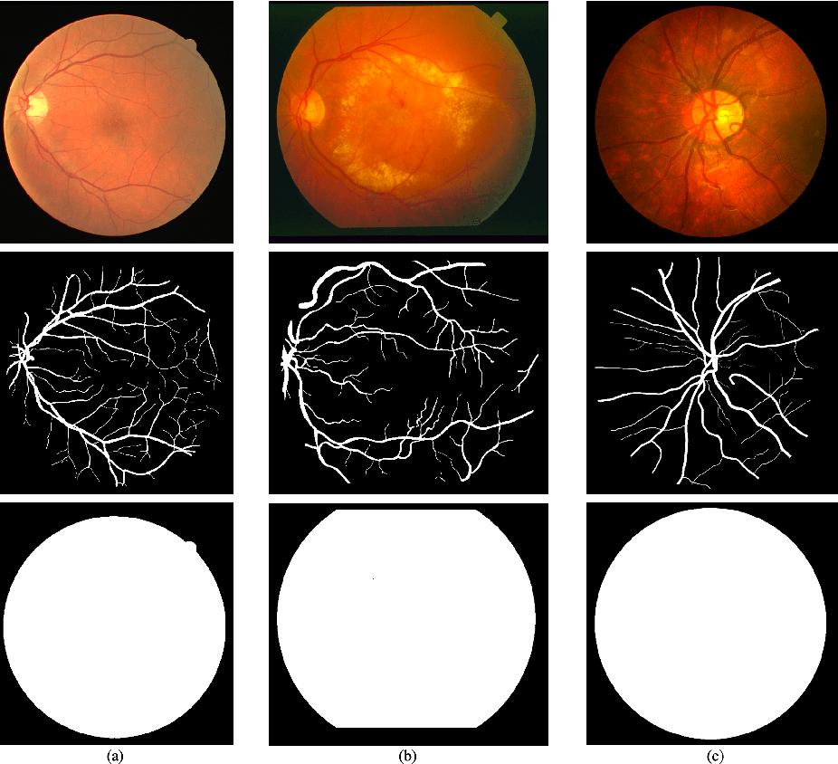Figure 1 for Retinal Vessel Segmentation based on Fully Convolutional Networks