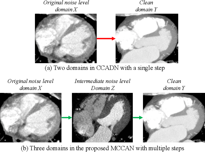 Figure 1 for Multi-Cycle-Consistent Adversarial Networks for Edge Denoising of Computed Tomography Images