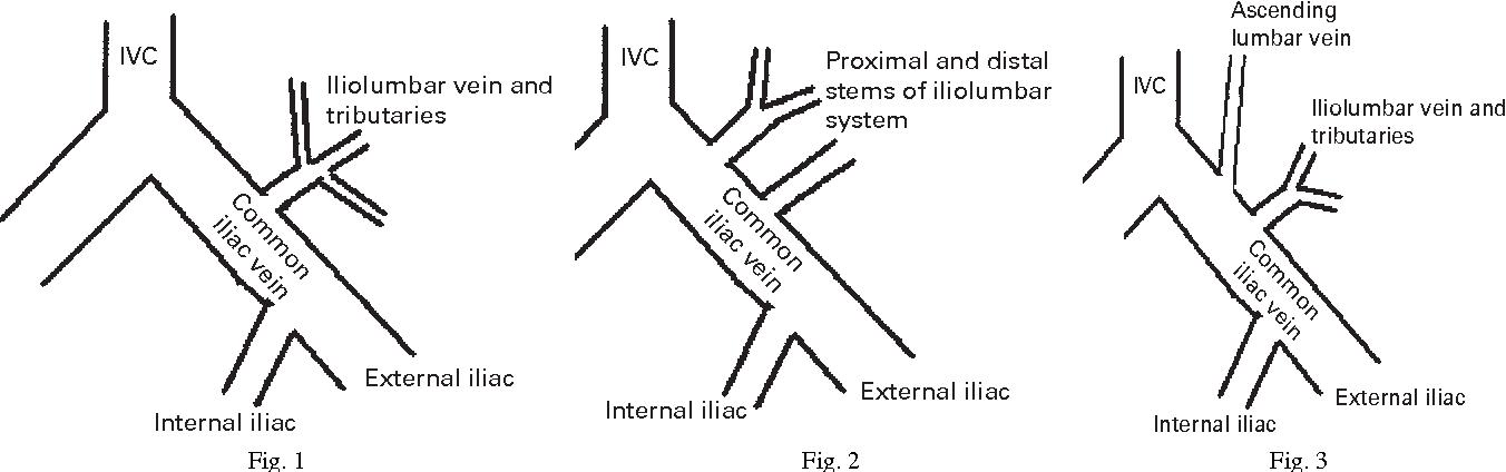 Figure 1 from The anatomy of the iliolumbar vein. A cadaver study ...